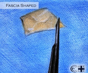Fascia Shaped